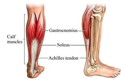 Bild av vadmusklerna som ofta blir förkortade vid idiopatisk tågång