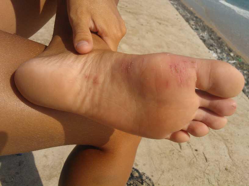 Mina fina fötter